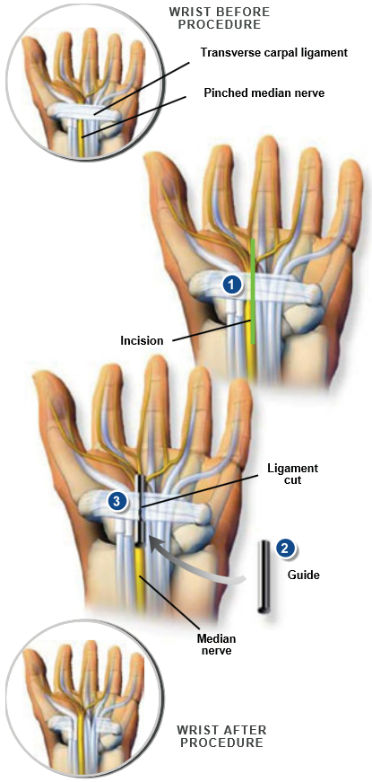 Open Carpal Tunnel Release Surgery Central Coast Orthopedic