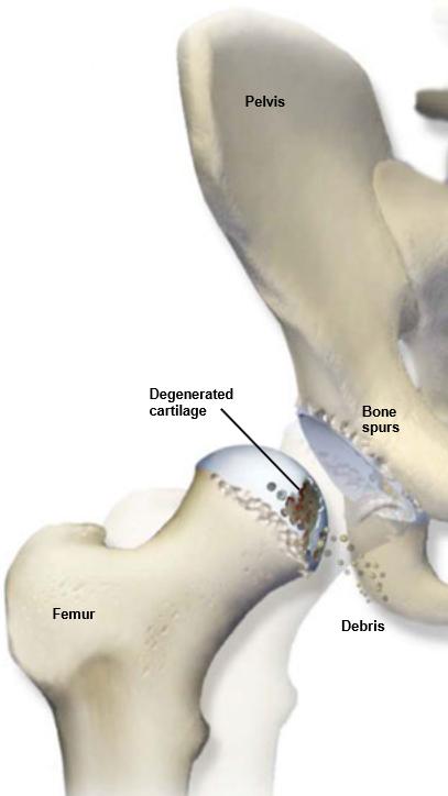 Osteoartritis-Cadera