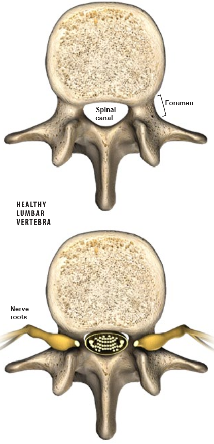 Spinal-Stenosis1