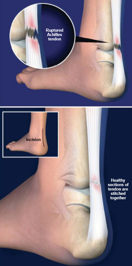 Surgery-Achilles-Tendon-Rupture