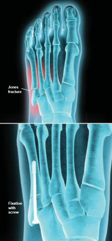 Jones-fracture-fixation