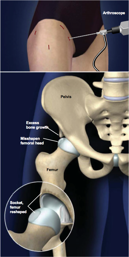 Arthroscopic Surgery for Femoral-Acetabular Impingement