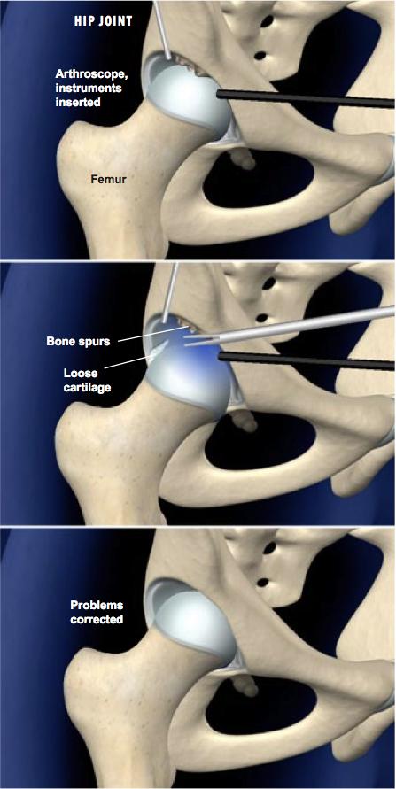 La artroscopia de cadera