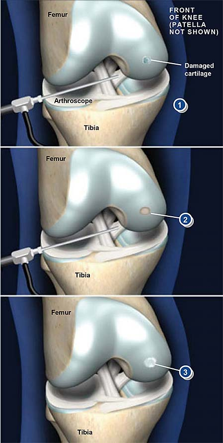 arthroscopic-chondroplasty