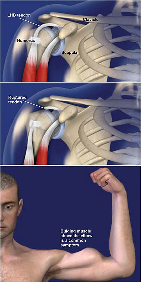 Biceps Tendon Rupture | Central Coast Orthopedic Medical Group