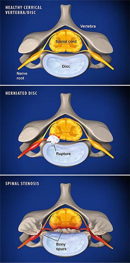 cervical-radiculopathy-1
