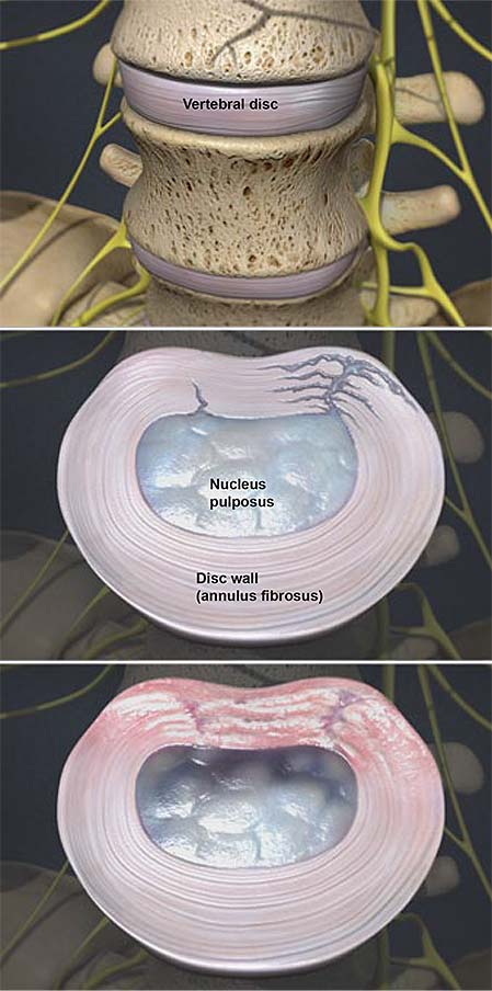 degenerative-disc-disease