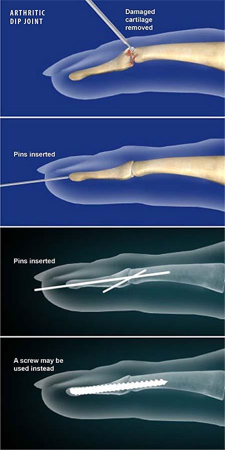 Articulación del dedo-junta-fusión-inmersión