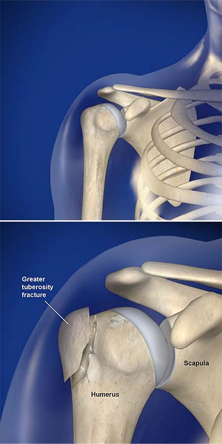 fractures-of-the-greater-tuberosity