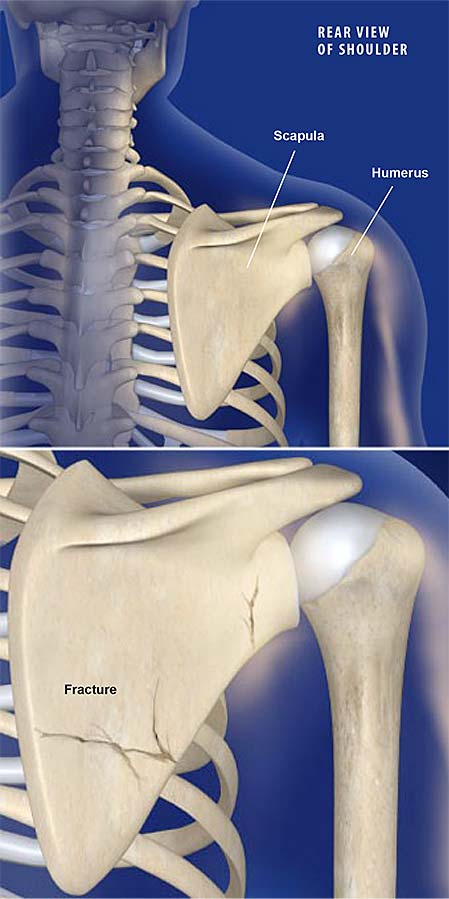 fractures-of-the-shoulder-blade-scapula