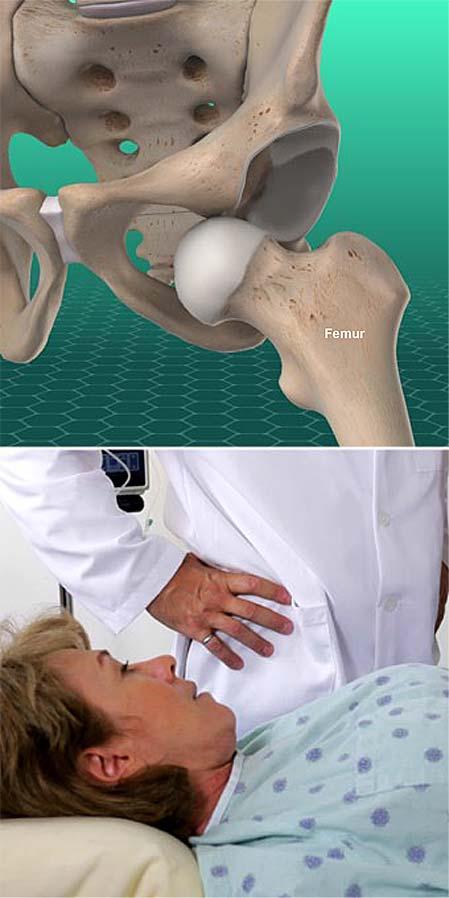 dislocación de la cadera