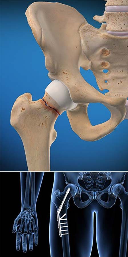 hip-fracture