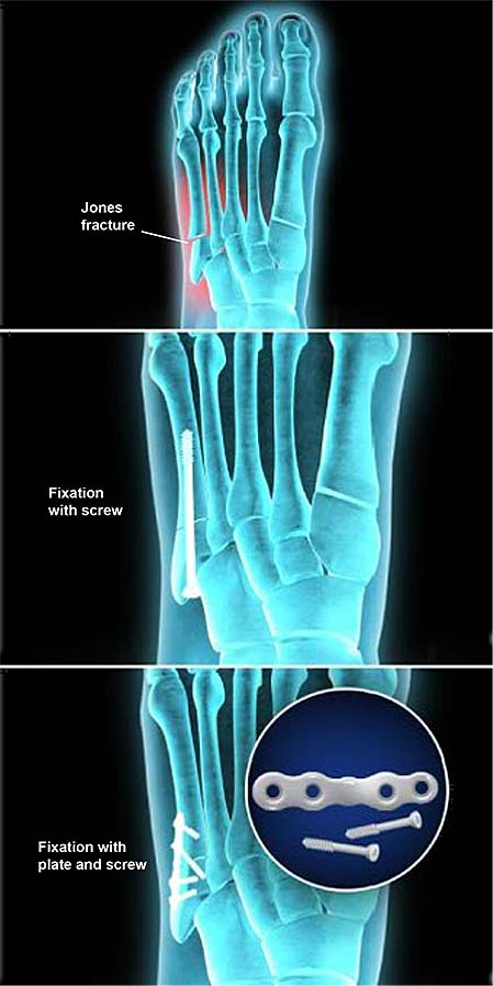 jones-fracture-fixation-open-reduction-and-internal-fixation