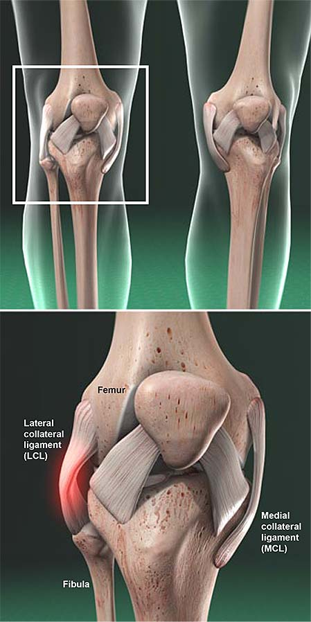 lateral-collateral-ligament-lcl-injury