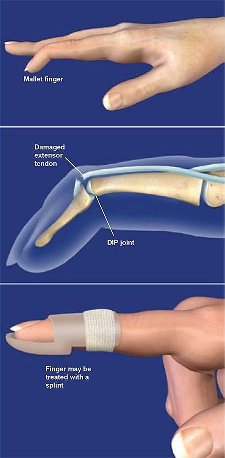 mallet-finger
