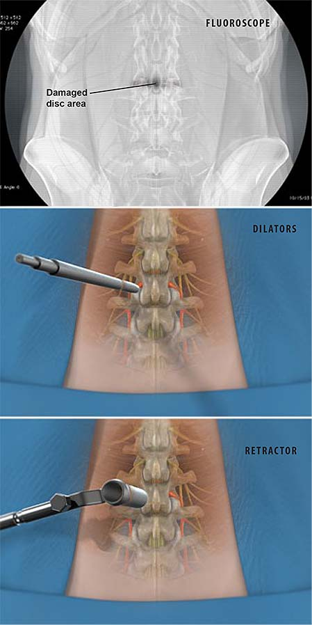 minimally-invasive-tlif-transforaminal-lumbar-interbody-fusion-1