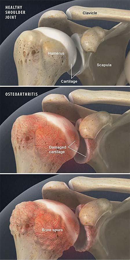 osteoarthritis-of-the-shoulder
