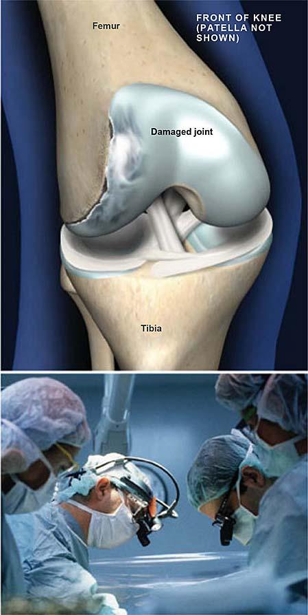 Osteocondritis-disecados de la rodilla