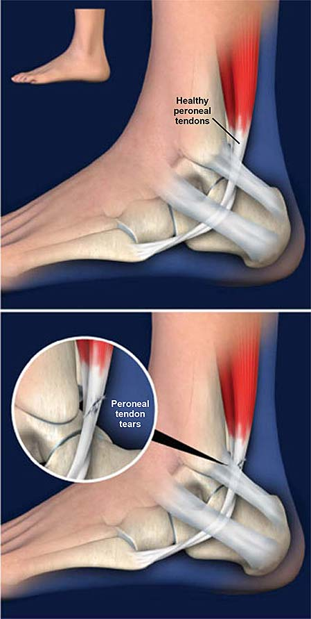 peroneal-tendon-tears