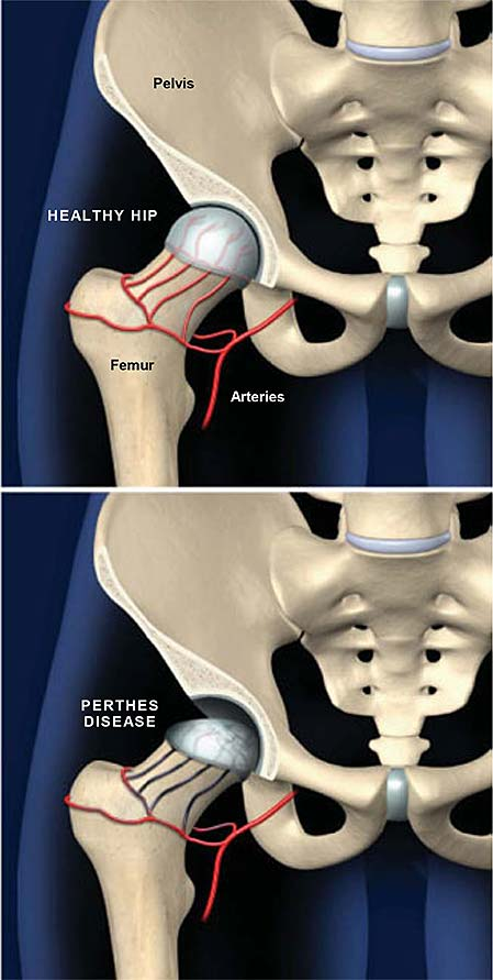 perthes-disease