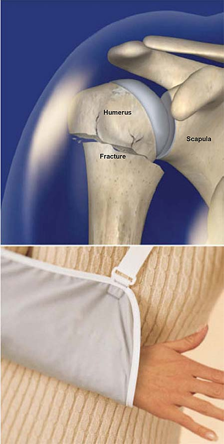 proximal-humerus-fracture-broken-shoulder