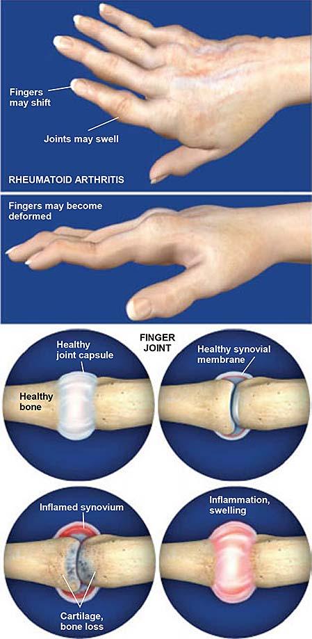 Artritis reumatoidea de la mano