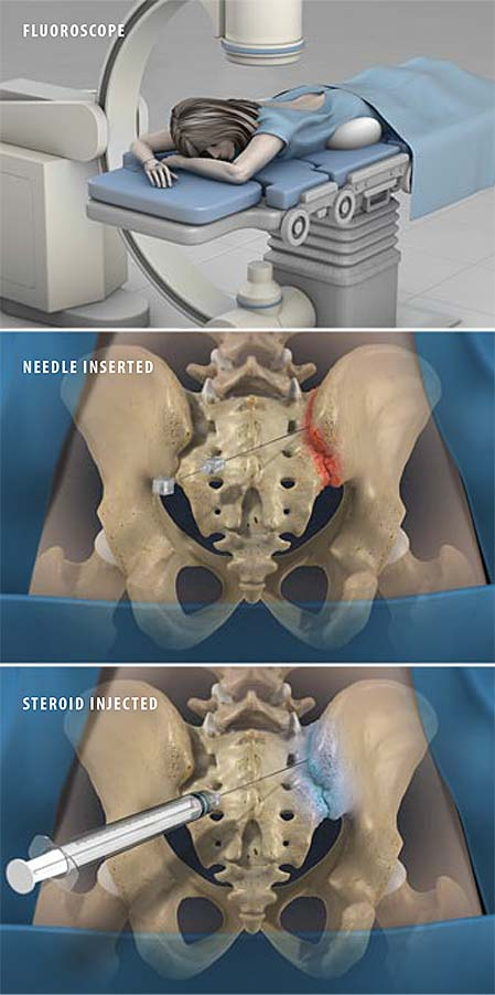 sacroiliac-joint-steroid-injection