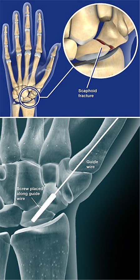 Escápido-fractura-apertura-reducción-y-fijación-interna-orif