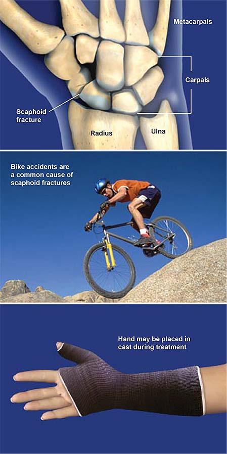 scaphoid-fractures-1