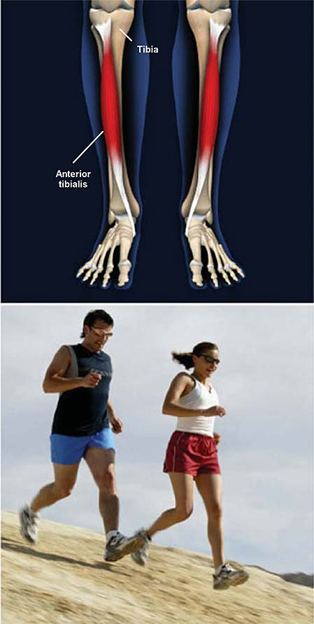 shin-splints-medial-tibial-stress-syndrome
