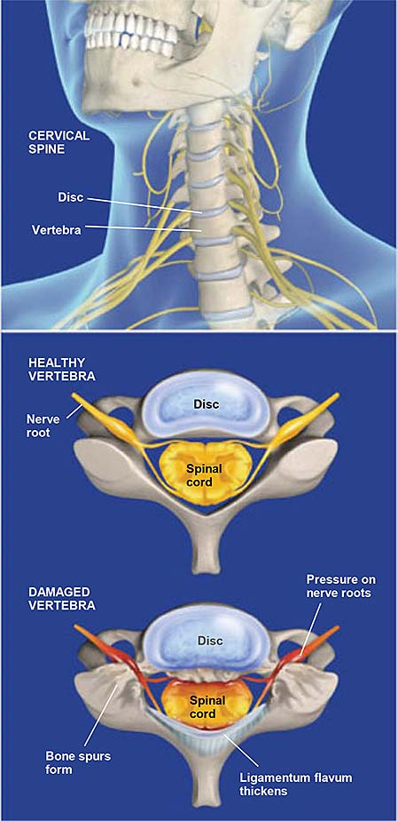 Spinal Stenosis  Cervical
