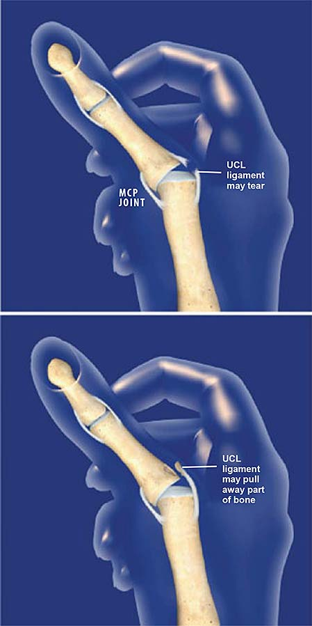 Thumb Ulnar Collateral Ligament Ucl Injury Central Coast
