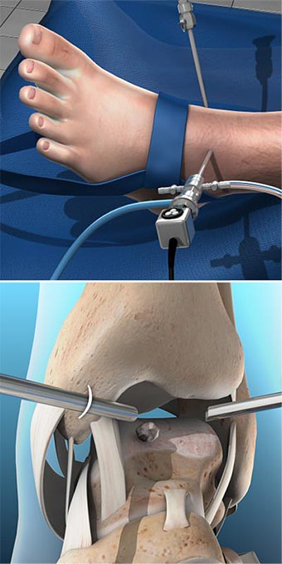 Arthroscopy-of-the-Ankle