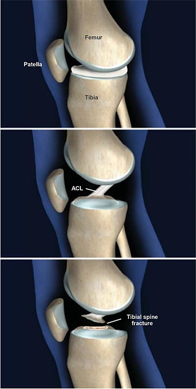 Fractures Of The Tibial Spine Central Coast Orthopedic Medical Group