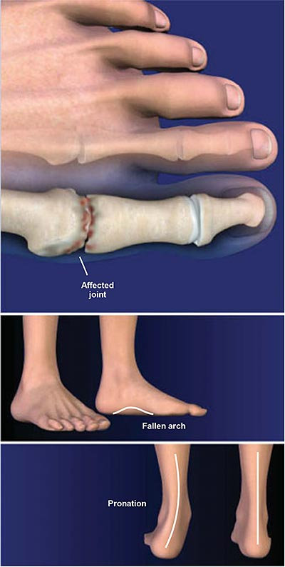 Hallux-Rigidus- (Stiff-Big-Toe)