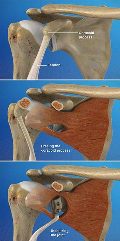 Latarjet-Procedure-for-Shoulder-Instability