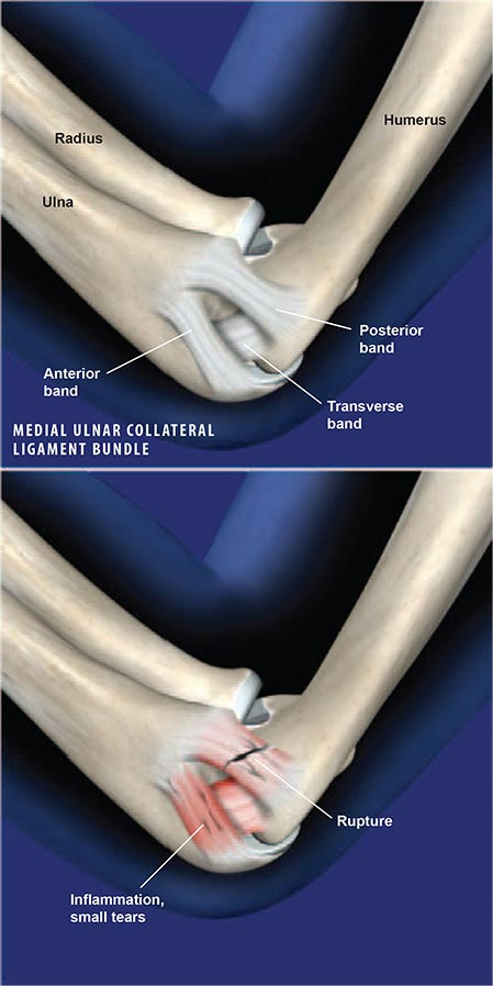 Medial Ulnar Collateral Ligament Injury