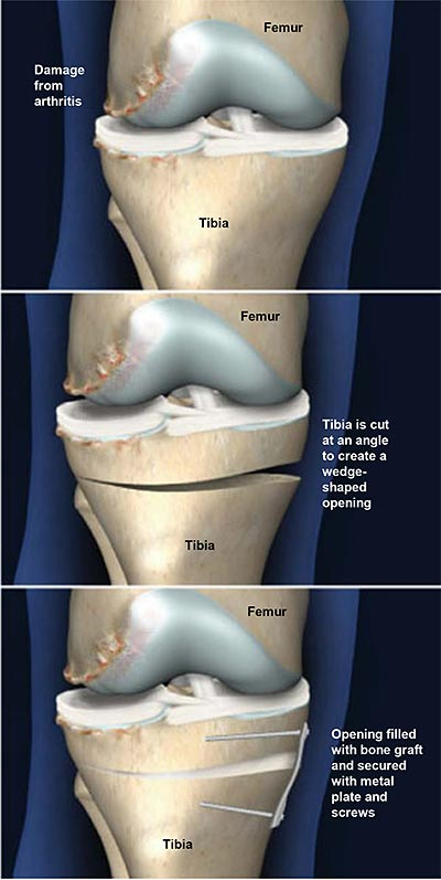 Osteotomía tibial con cuña abierta