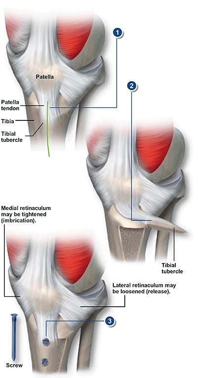Osteotomía del tubérculo tibial | Grupo médico ortopédico de la ...